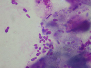 Here is a picture of a different dog that had a yeast infection. All of the little snowman shaped purple blobs are actually yeast! This dog will need a different treatment to Aristotle whose ears were filled with bacteria rather than yeast.